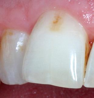 Цвет пораженной кариесом эмали может постепенно становиться коричневым вследствие пигментирования различными красителями.