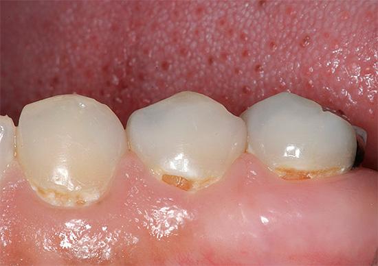 При начальной форме кариозного процесса возможно ощущение чувства оскомины во рту, а также повышенная чувствительность в области поврежденной эмали.