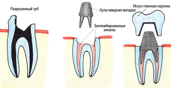 Пример восстановления зуба с помощью культевидной вкладки и коронки