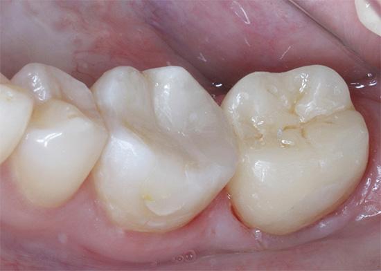 Полоски для отбеливания зубов пермь
