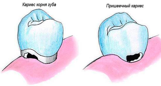 Пришеечный кариес и корневой несколько различаются по месту своей дислокации на зубе