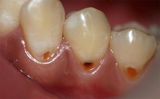 Кариозный процесс в корне зуба может долго протекать незамеченным, пока не проявит себя пришеечными дефектами
