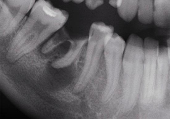 Рентгеновский снимок зубов: у корня одного из них заметна область затемнения