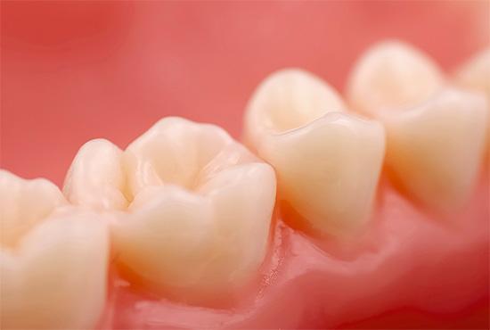 Даже если зубы кажутся полностью здоровыми, не исключено, что под деснами протекает кариозный процесс, поэтому важно регулярно посещать стоматолога.