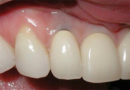 При длительном развитии кариеса под десной корень может настолько сильно поражаться, что зуб приходится удалять.