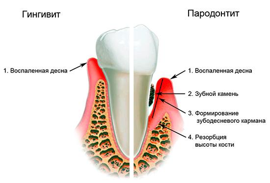 Придесневой кариес часто сопряжен с различными осложнениями, одним из которых является пародонтит...