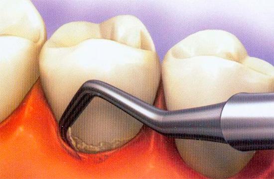 В карманах между десной и зубом могут скапливаться остатки пищи и кариесогенные микроорганизмы.