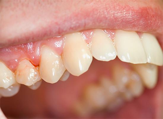 Зачастую больные жалуются даже не на зуб, а на боли в десне