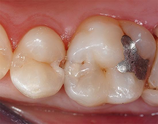 Существенный недостаток пломб из амальгамы - высокое содержание в ней ртути.