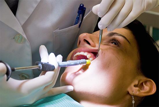 При использовании анестезии лечение зуба может пройти для пациента практически безболезненно.