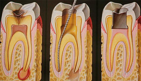 Если развитие глубокого кариеса привело к инфицированию пульбы, потребуется лечение каналов зуба.