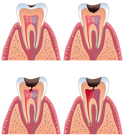 По мере развития кариозного процесса полость все ближе подходит к пульпе зуба
