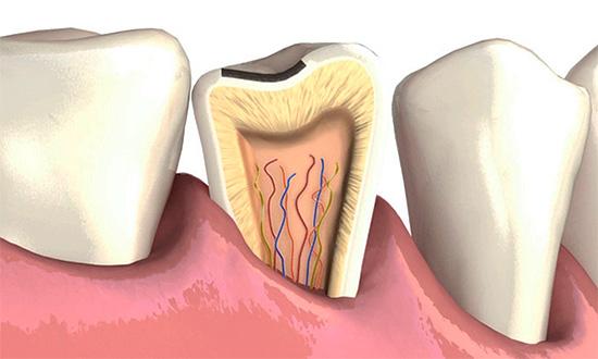 Если на эмали имеются существенные сколы, важно их вовремя залечить, так как через них возможно развитие кариозного процесса вглубь зуба.