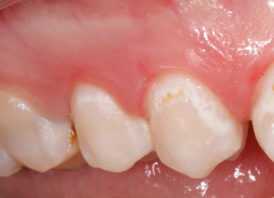 На фотографии показан пример кариеса в стадии пятна - это начальная форма патологического процесса
