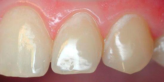 Далеко не каждый человек, обнаружив у себя на зубах такие белые пятна, сообразит, что это именно кариес