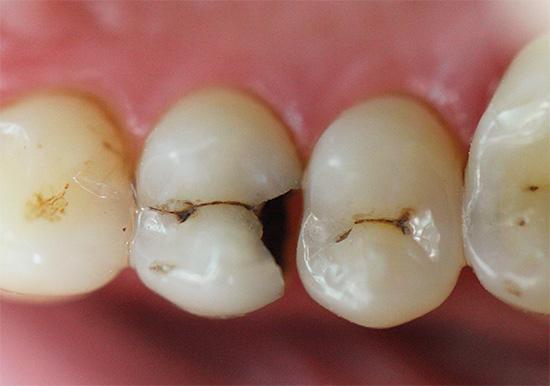 Обычному человеку бывает гораздо проще диагностировать у себя далеко зашедший кариес, когда зубы уже начинают испытывать болевые ощущения от различных воздействий.