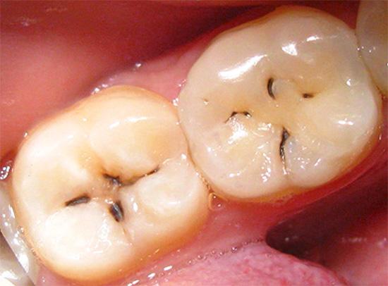 Пример визуально хорошо различимого кариеса в виде темных пятен и полос в области фиссур зуба.