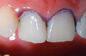 Диагностика кариеса на начальной стадии может быть проведена с использованием специальных окаршивающих растворов.