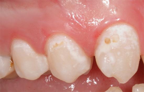 При начальном кариесе в стадии белого и даже сильно пигментированного пятна лечение зубов зачастую может быть проведено консервативными методами, важно лишь вовремя начать...