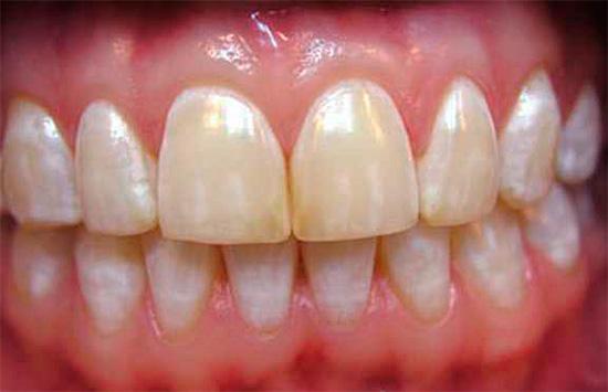 Множественные беловатые пятна, симметрично расположенные на одноименных зубах, характерны для флюороза.