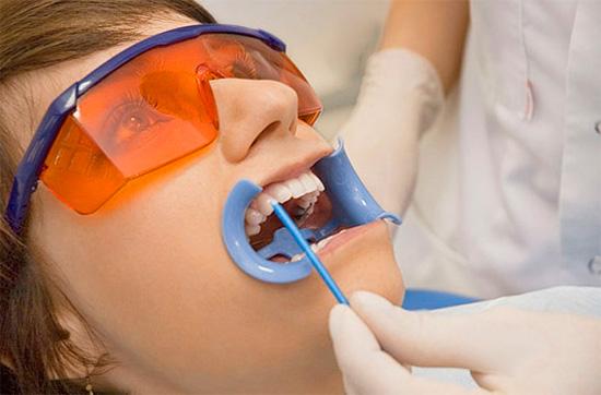 Курс реминерализующей терапии обычно завершается покрытием зубов специальным фторлаком.