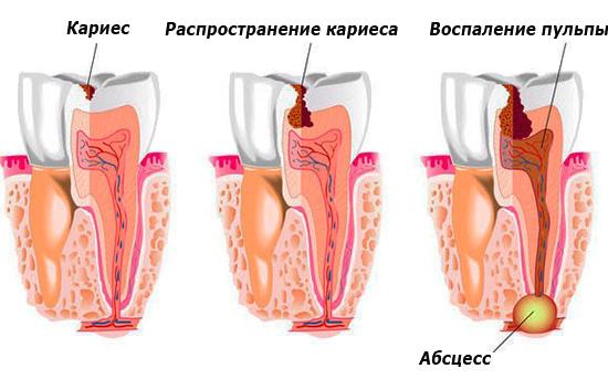 На картинке показано распространение кариеса вглубь зуба с последующим воспалением в области корня