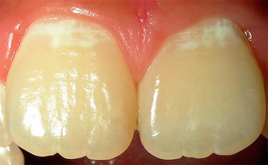 А вот еще один пример начального кариеса на передних зубах
