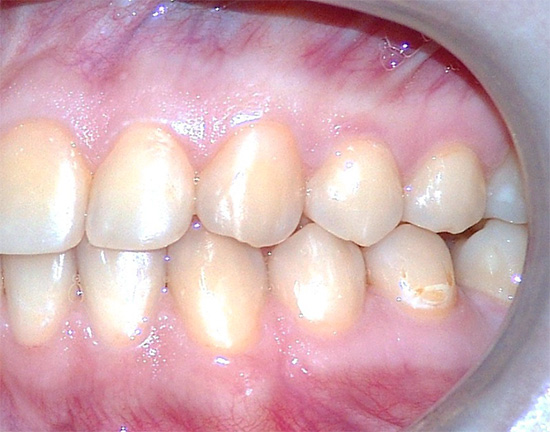 Кариозный процесс может начаться на любом зубе и на любой его поверхности