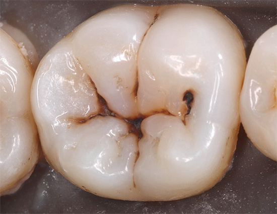 Начальный кариес в стадии темного пятна (пигментированного) в фиссурах зуба
