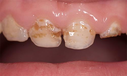Длительное воздействие кислот на эмаль зуба приводит к ее деминерализации, а впоследствии - к кариесу