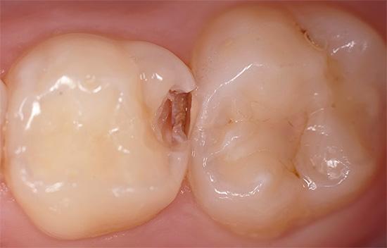 Наличие кариесогенных микроорганизмов в ротовой полости еще не говорит о том, что обязательно возникнет кариес зубов