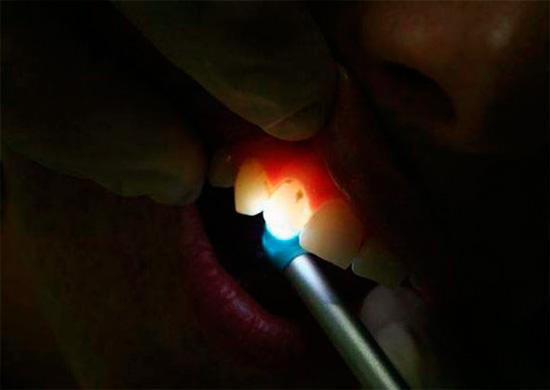 Трансиллюминирование как метод диагностики скрытого кариеса состоит в освещении зуба ярким светом, при этом кариозные зоны легко можно обнаружить за счет их меньшей прозрачности.