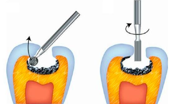 Пример препарирования кариозных полостей в области фиссур зуба