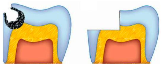 Главная задча при таком препарировании - зачистить весь инфицированный дентин.