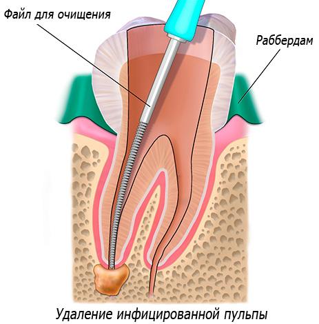 На картинке схематично показана зачистка зубных каналов