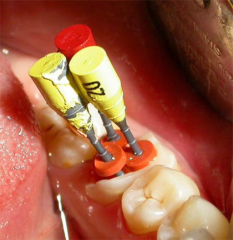 Важно полностью зачистить и антисептировать каждый канал зуба