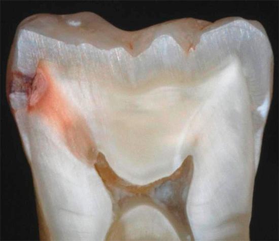 На фотографии показан пример того, как выглядит скрытый кариес на срезе реального зуба: ранее кариозная область была скрыта в месте контакта соседних зубов и ничем внешне себя не выдавала.