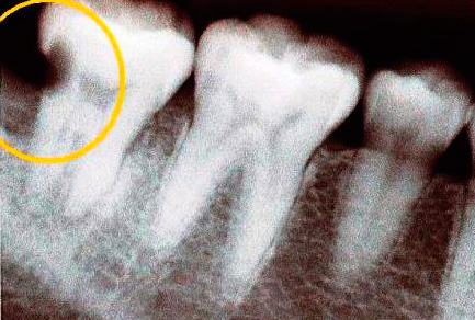 На рентгенограмме хорошо видна кариозная полость в зубе.