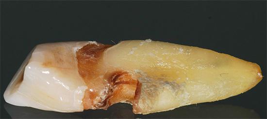 На фотографии показан пример, когда скрытый кариес в области корня зуба привел в итоге к необходимости его удаления.