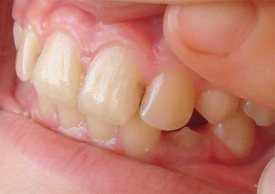 Кариозный процесс в межзубной области может захватывать сразу оба зуба.