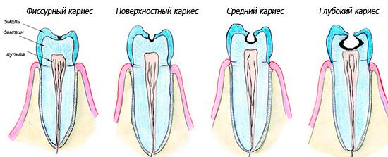 В отсутствие лечения кариозный процесс будет прогрессировать, захватывая все более глубоко лежащие ткани зуба