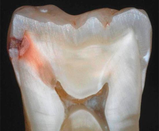 Если вовремя не начать лечение, то кариес разрушит слой эмали и проникнет внутрь зуба, к дентину, а затем и в пульповую камеру...