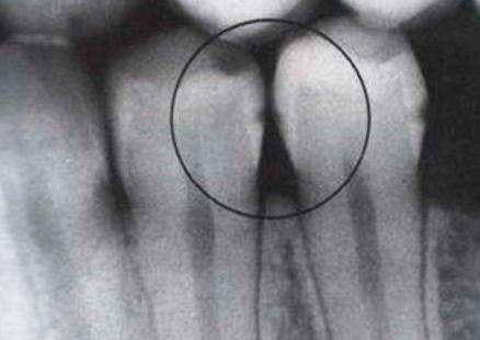 Пример рентгеновского снимка зубов - видно наличие скрытого межзубного кариеса