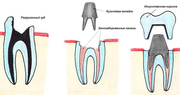На картинке показано восстановление поврежденного зуба с помощью культевой вкладки и коронки.