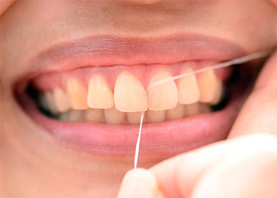 Использование зубной нити позволяет эффективно прочищать межзубные промежутки, где также скрыто может развиваться кариес.
