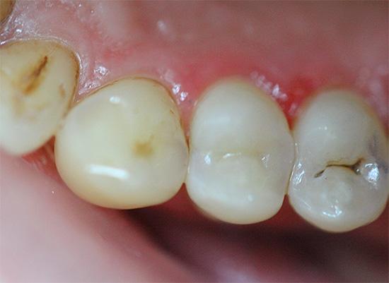 Небольшие следы кариеса на зубах зачастую воспринимаются как нечто само собой разумеющееся.