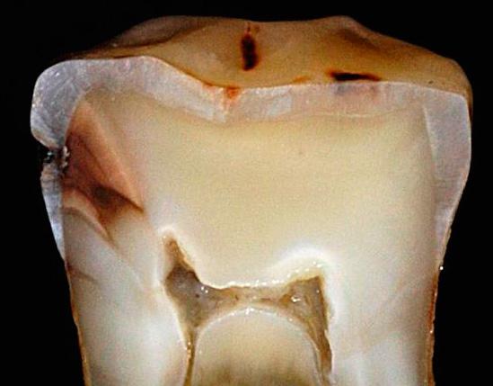 На фотографии среза зуба показано проникновение кариеса в толщу дентина.