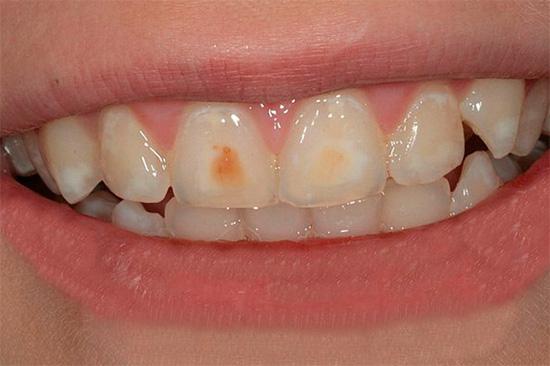 На зубах видны множественные очаги начального кариеса - белые пятна на эмали, местами уже пигментированные.