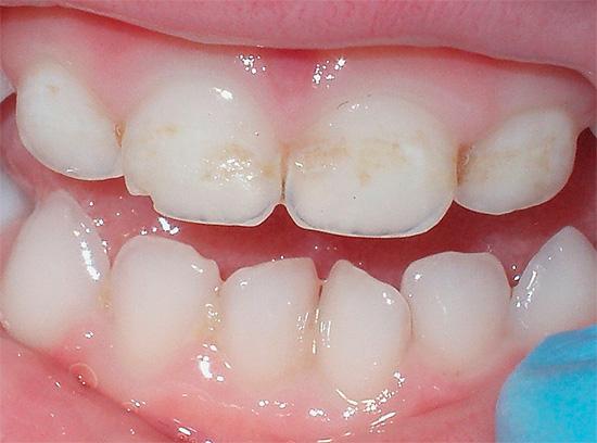 При первых же признаках деминерализации эмали зуба нужно обращаться к стоматологу, тем самым не дав процессу возможности перейти в острую форму.
