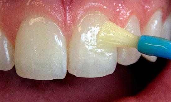Эффективным методом лечения и профилактики кареиса является обработка зубов фторсодержащими препаратами, например, специальными лаками.